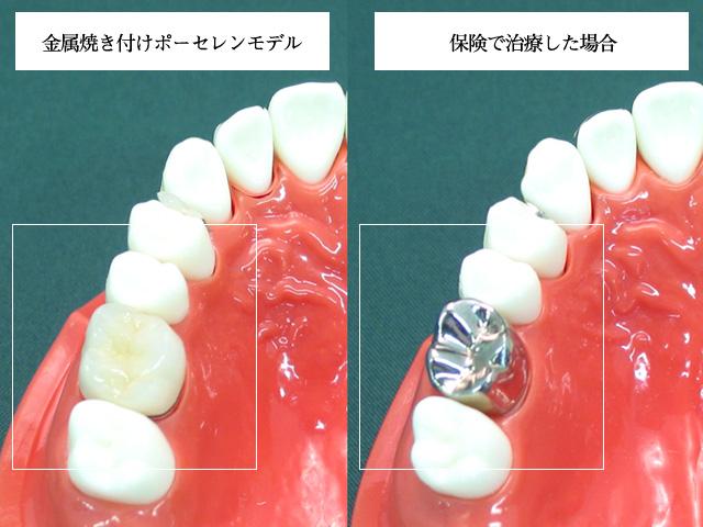 審美歯科 セラミックス 金属焼付けポーセレン(かぶせるタイプ)