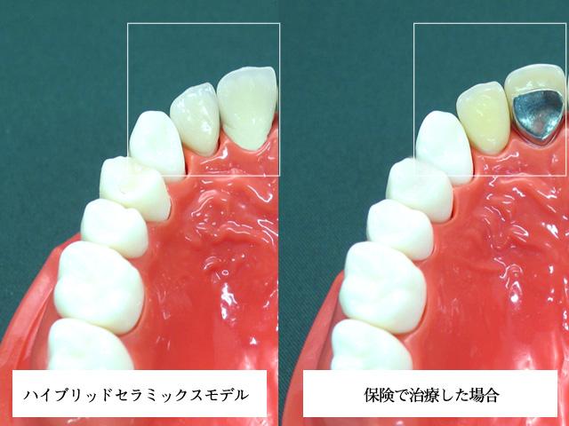 審美歯科 セラミックス ハイブリッドセラミックス(かぶせるタイプ)