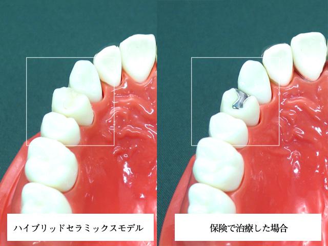 審美歯科 セラミックス ハイブリッドセラミックス(詰めるタイプ)